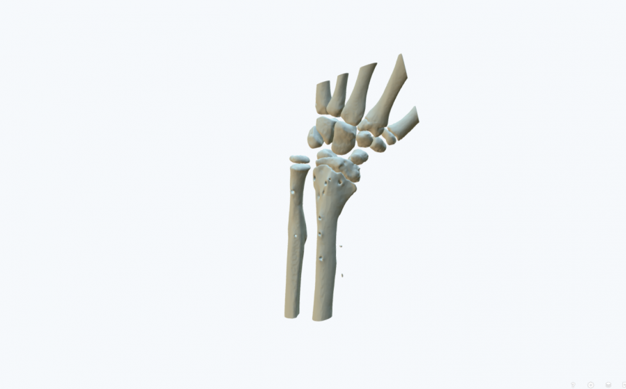 Pediatric Radial Deformity