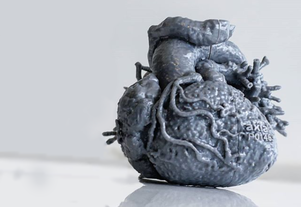 congenital heart disease 3D printed model