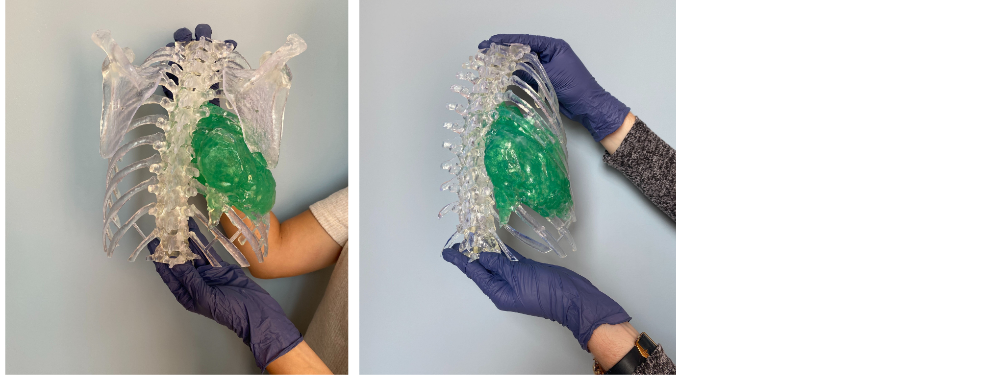 3D printed Complex Spinal Sarcoma