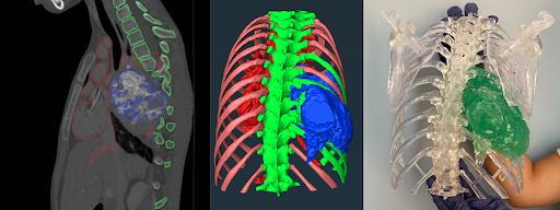 How 3D modeling can increase operating room throughput & help reduce the backlog of spine surgeries caused by COVID-19